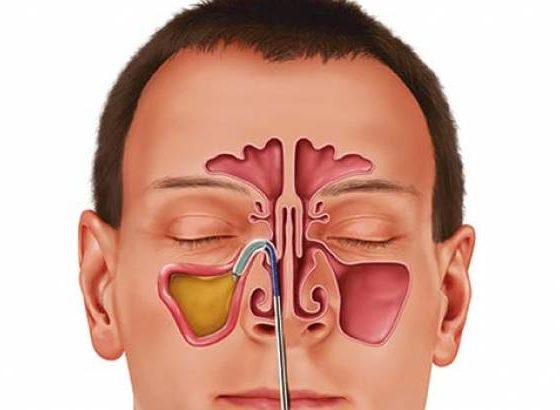 Sinus Infection Treatment: 10 Home Remedies